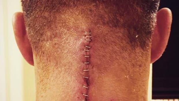 Tyson Kidd Scar