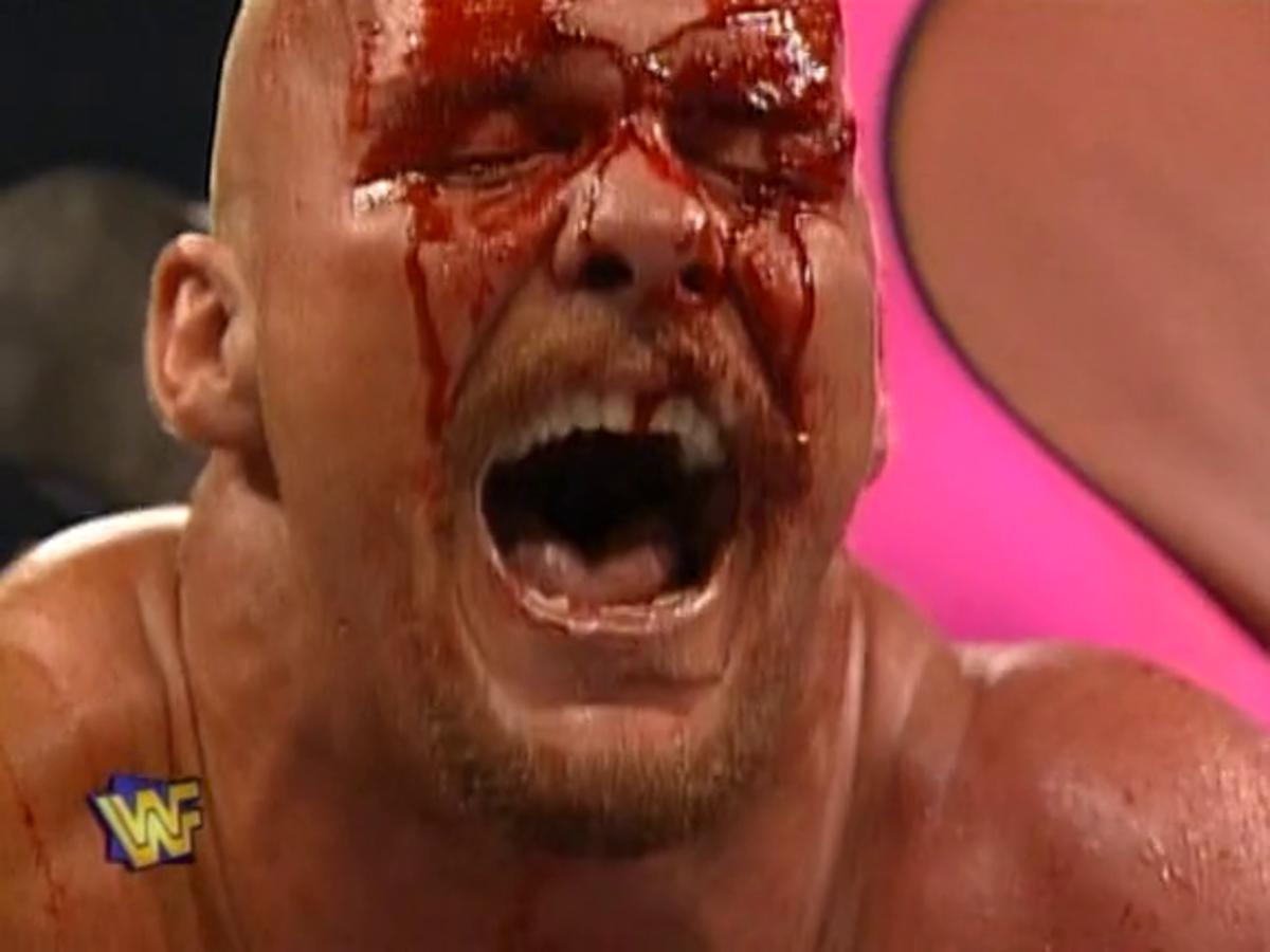 Steve Austin's Wrestlemania Moment