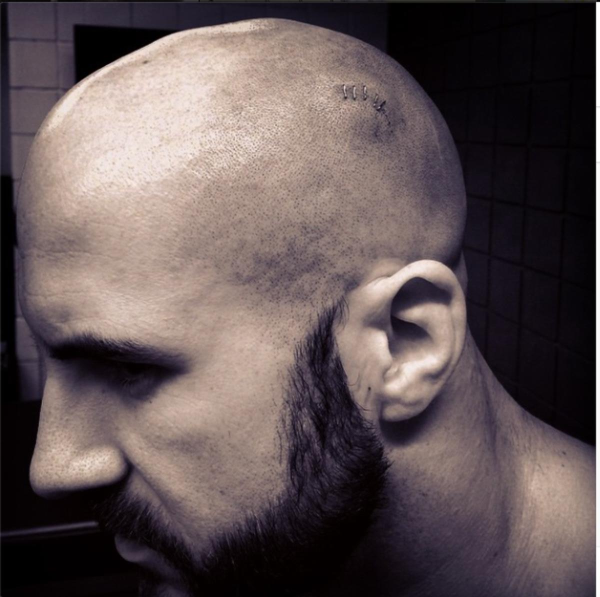 Cesaro Injured